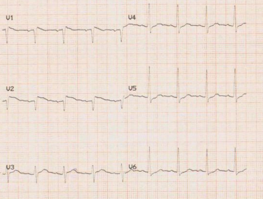 Ahmed Figure 1. Our patient's initial electrocardiogram (ECG) showing a coved ST-segment elevation in the anterior chest leads V1 and V2