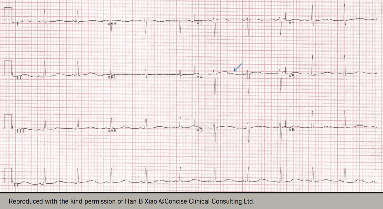 Figure 2. Electrocardiogram changes associated with hypokalaemia
