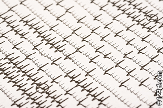 Atrial fibrillation Echocardiogram (ECG)