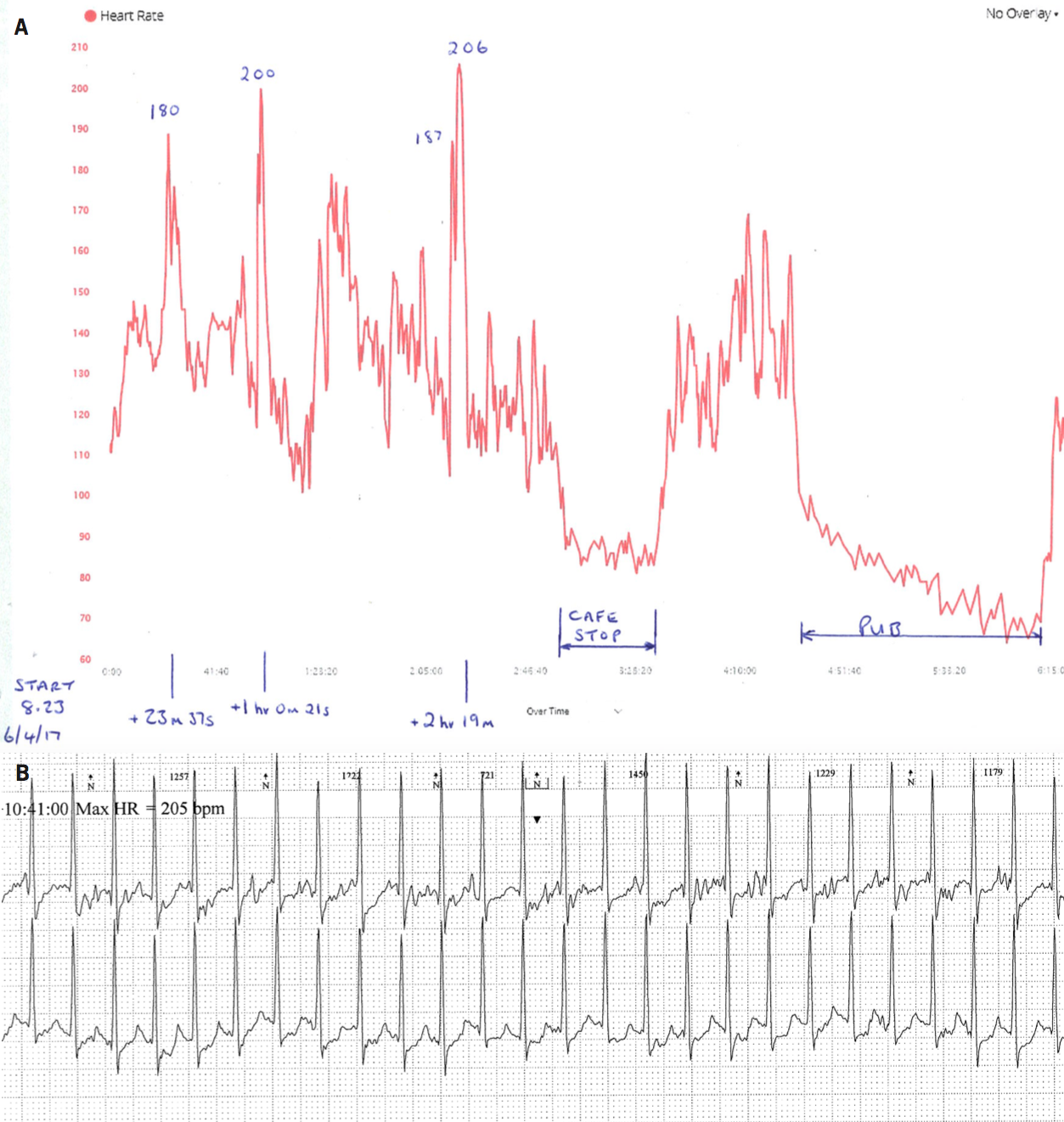 Doris - Figure 3. A. Patient heart rate data recorded by a Garmin chest strap monitor with Garmin Edge 1000 bike computer. Breaks in exercise have been added. B. Data from ambulatory monitoring on the same day at the time of the heart rate increase to 206 bpm and shows a narrow complex tachycardia