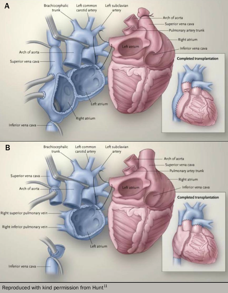 Heart failure learning module 6 - Figure 8. Evolving surgical technique, with the donor organ in red, recipient structures in blue, and surgical instruments in grey. Panel A shows the biatrial technique where the recipient right atrium remains in situ necessitating a long atrial anastamosis but retaining more normal haemodynamics with native structures. Panel B shows the bicaval technique, where the recipient right atrium is removed and great veins anastamosed to the donor atrium