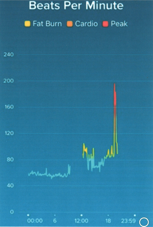 Doris - Figure 2. Heart rate data recorded on a Fitbit in a patient with palpitations showing a rapid, brief increase in heart rate to approximately 200 bpm