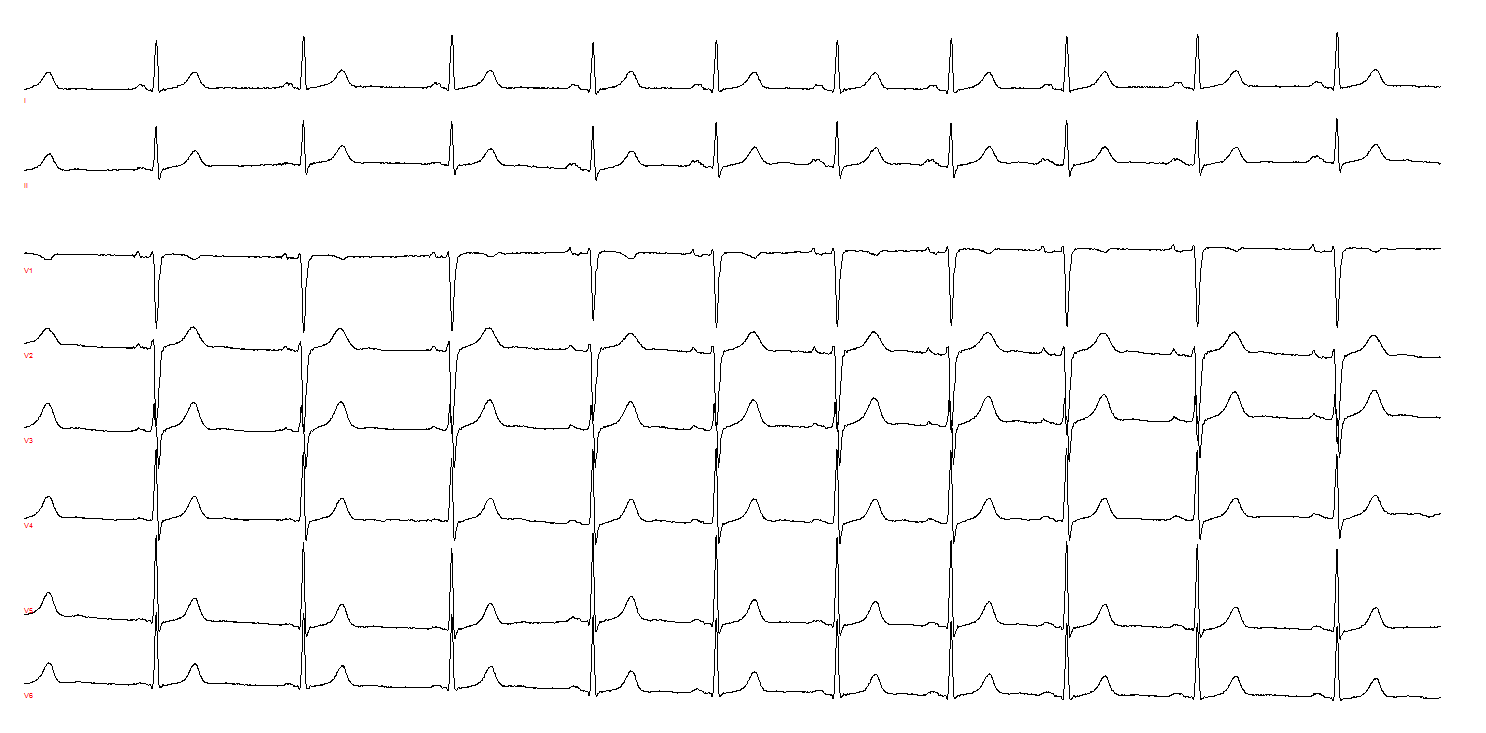 Hughes - Figure 2. A second example of multi-focal atrial rhythm. The R–R interval shortens when the initial ectopic atrial focus – the P-wave frontal plane axis is outside the range 15 to 75 degrees – changes to an alternative atrial focus at the fourth complex. An alternative explanation is an ectopic atrial rhythm changing to sinus rhythm at a faster rate