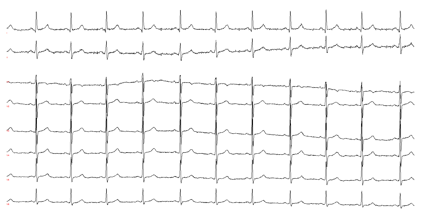 Hughes - Figure 3. A third example of multi-focal atrial rhythm. The muscle tremor superimposed on leads I and II make it impossible to be confident about the presence or absence of multi-focal atrial rhythm. However, complexes 8 and 9 in lead V2 are distinctly different to the first six complexes and to the last two complexes