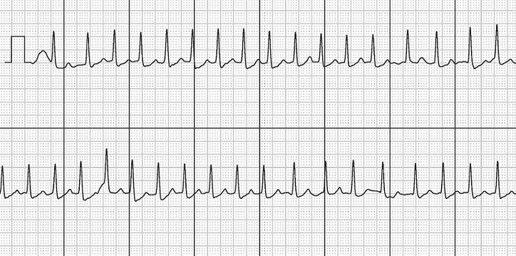 Dimarco Figure 2. Electrocardiogram (ECG) recorded using the Kardia Mobile – atrial fibrillation