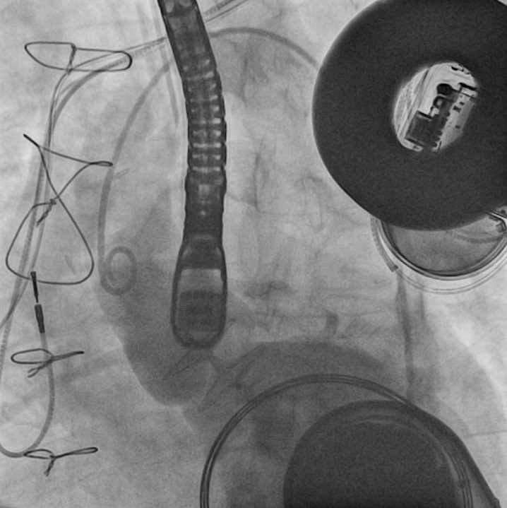 Mattar - Figure 9. An aortogram showing proper positioning of the closure device and patency of the coronary arteries