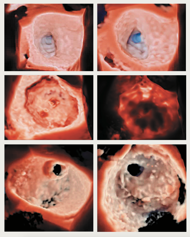 Cheng Figure 1. High-resolution photo-realistic 3D echocardiographic images – top row: left atrial appendage occlusion viewed from opposing angles; middle row: Watchman device for left atrial appendage occlusion with the ability to adjust the light source and 'backlight' (right) the structure; bottom row: mitral valve perforation viewed from left atrial and left ventricular views