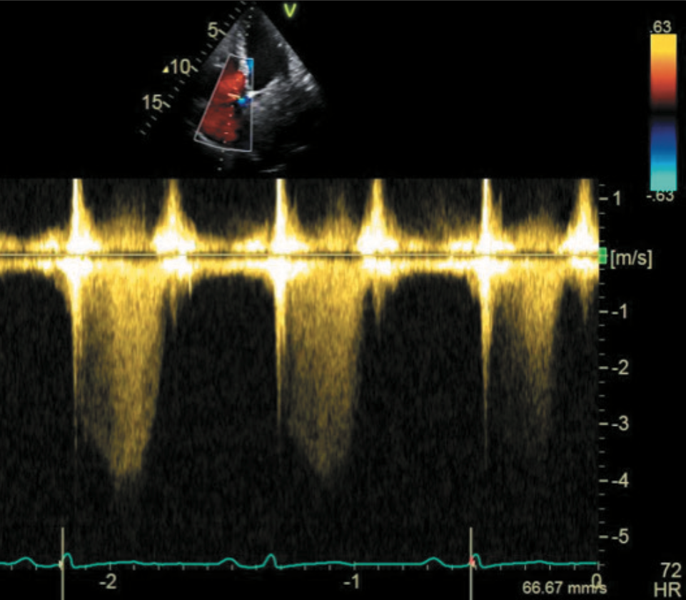 Calo Figure 2. Continuous Doppler image of tricuspid regurgitation indicating a peak pressure difference of >60 mmHg between the right ventricle and right atrium
