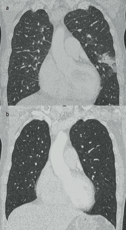 Calo Figure 3. Thoracic computed tomography (CT) image showing a lingular opacification in the left lung before (a) and normal lung fields after (b) surgery