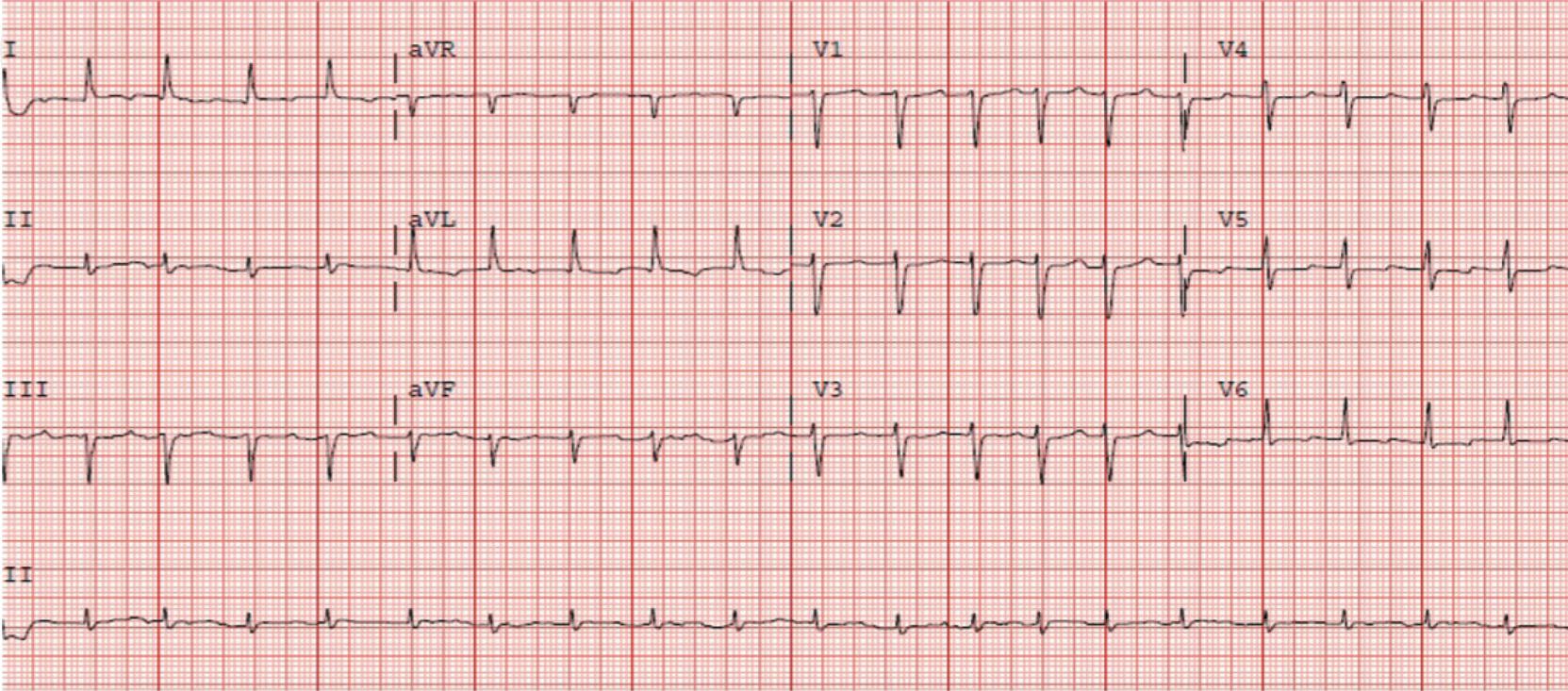 Agudo Figure 1. Initial electrocardiogram (ECG): sinus tachycardia with narrow QRS complex