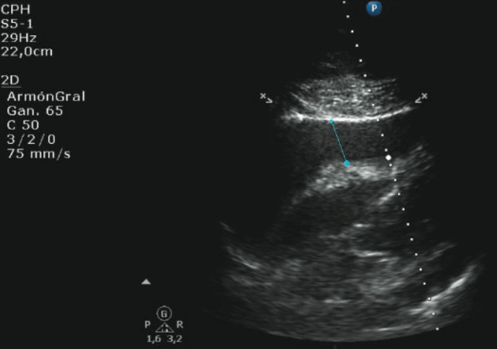 Agudo Figure 2. Echocardiogram (subcostal view) with severe pericardial effusion