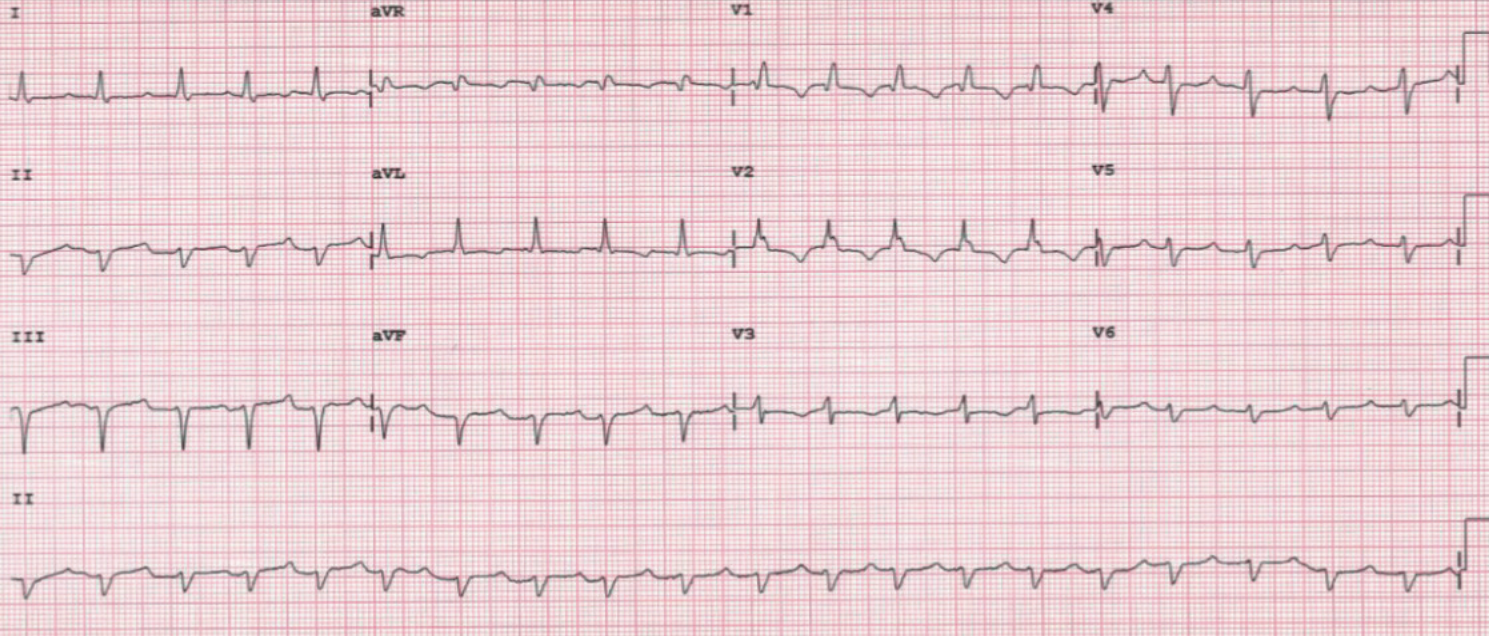 Agudo Figure 3. ECG post-pericardiocentesis: right bundle branch block
