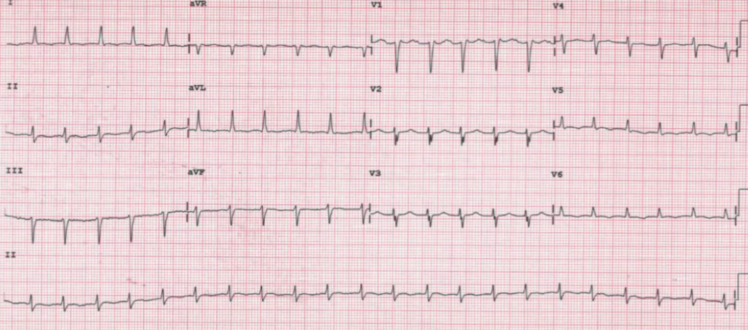 Agudo Figure 4. ECG after some days of pericardiocentesis with a narrow QRS complex