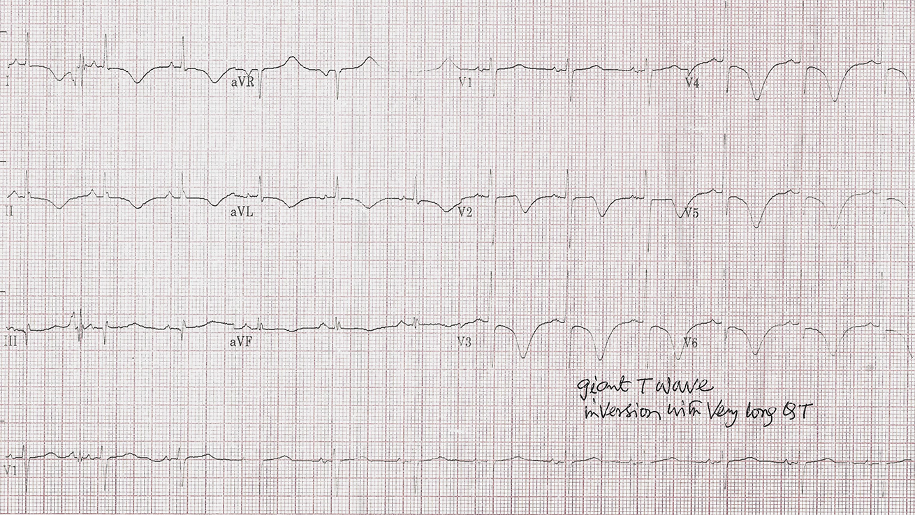 Figure 2. Case 2 ECG showing giant T-wave inversion with prolonged QT interval