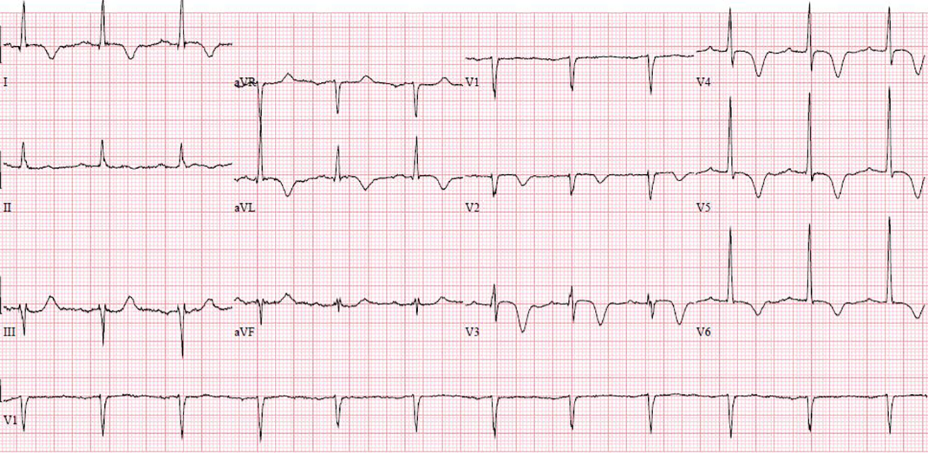 Figure 3. Case 4 ECG showing giant T-wave inversion in chest leads with prolonged QT interval