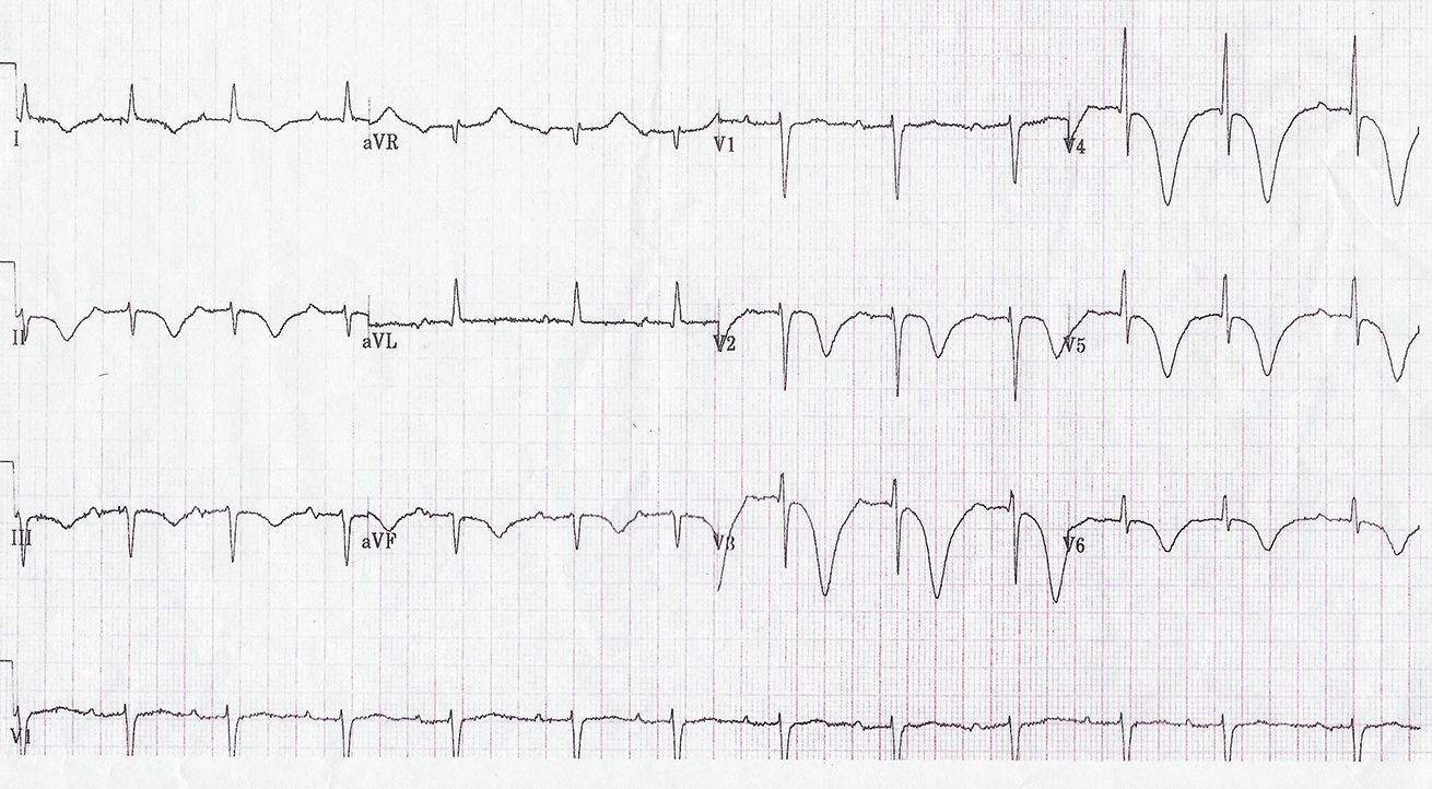 Figure 4. Case 7 ECG showing giant T-wave inversion with prolonged QT interval
