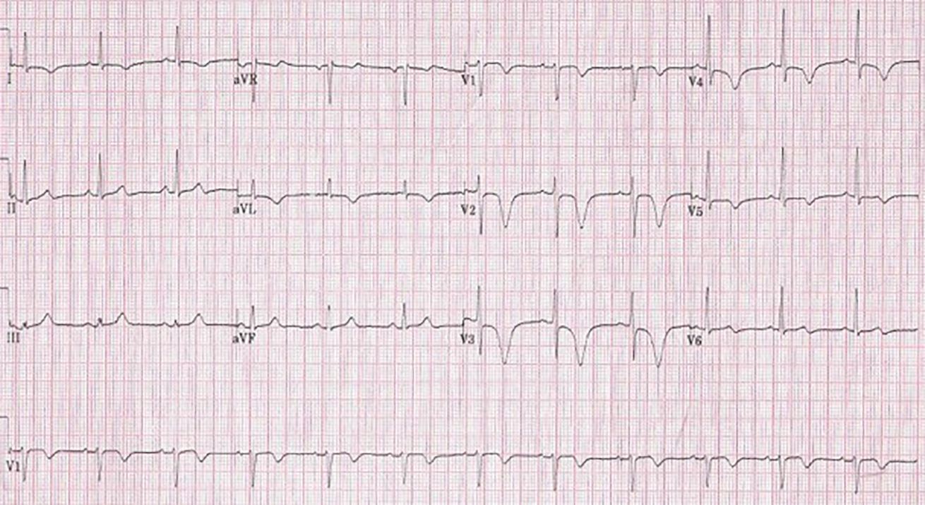 Figure 5. Case 8 ECG showing giant T-wave inversion and prolonged QT interval