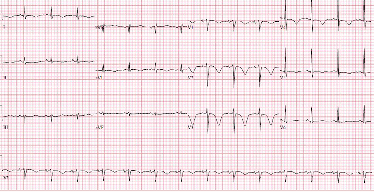 Figure 6. Case 9 ECG showing giant T-wave inversion with QT prolongation