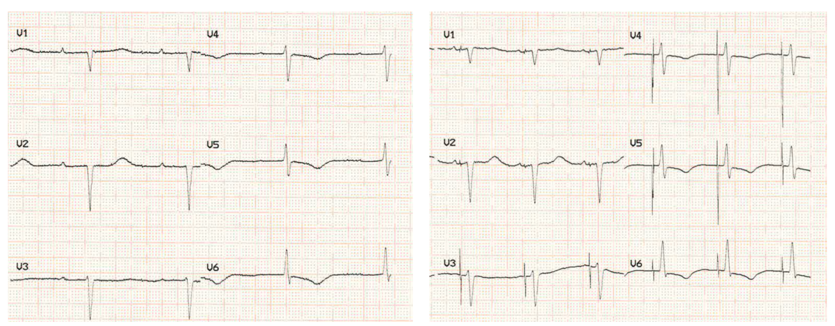 Keene - Pacing: Figure 2. Left: Sinus rhythm with first-degree AV block and narrow QRS. Right: His-bundle pacing maintains the narrow QRS morphology by providing physiological activation of the ventricles