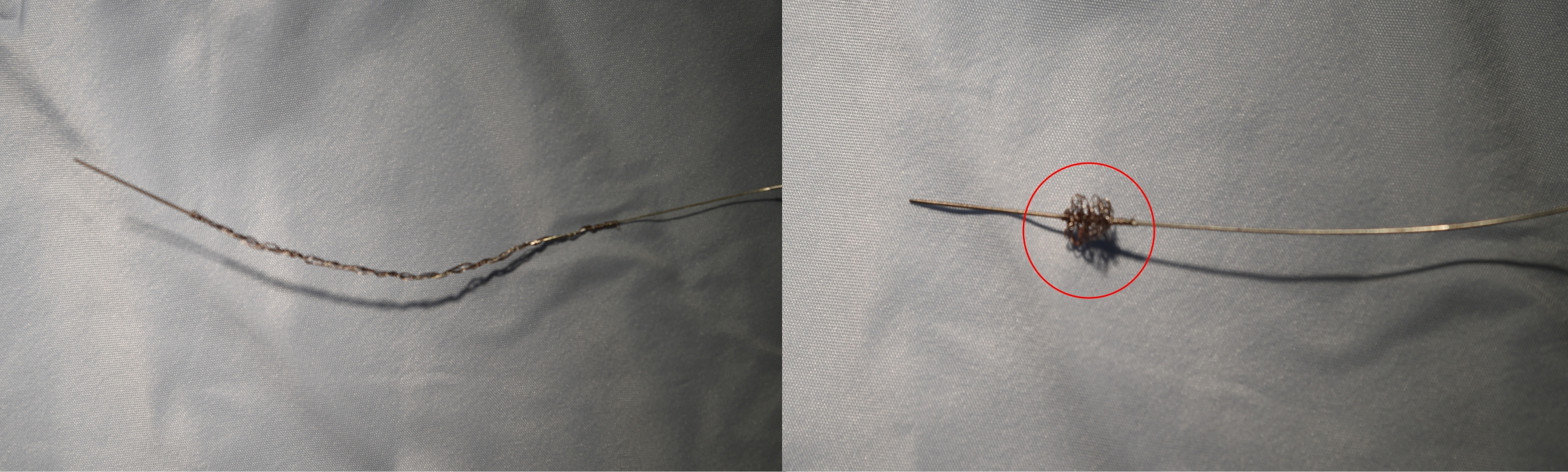 Najam - Pacing: Figure 2. An undeployed Liberator stylet (left) and a deployed Liberator stylet (right). Notice the lead locking mechanism highlighted by the red circle