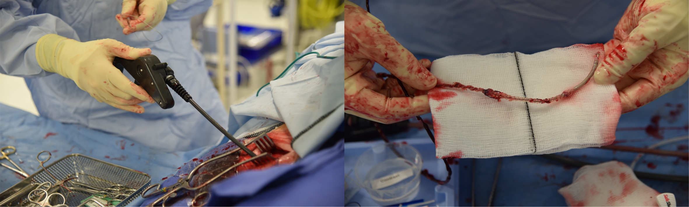 Najam - Pacing: Figure 3. An Evolution® power mechanical sheath in use (left). An extracted lead with attached fibrous tissue (right)