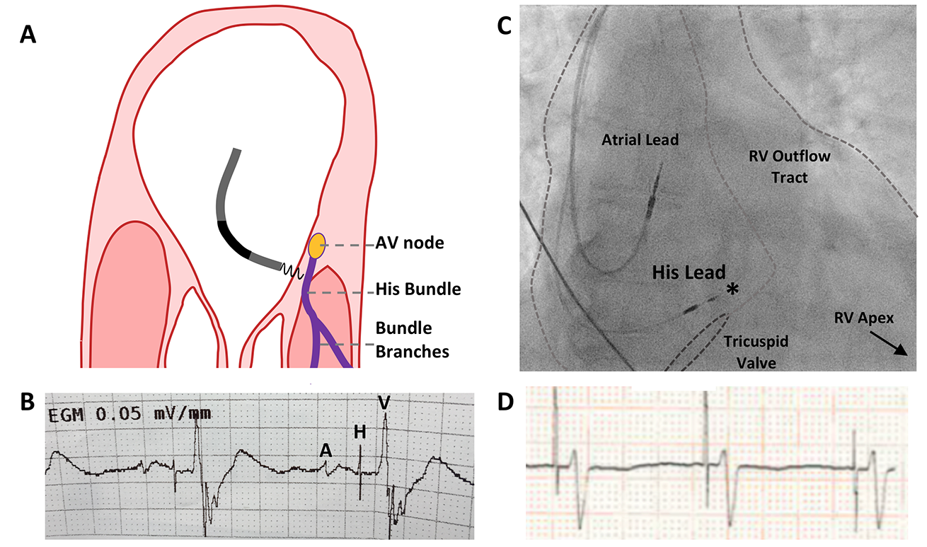 Keene - Pacing: Figure 3. A: The His bundle arises from the AV node on the atrial side of the tricuspid valve. As the tricuspid valve is more apical than the mitral valve, some ventricular tissue is located in the vicinity of the proximal His bundle. B: Fluoroscopy showing the anatomical landmarks for His-bundle pacing. C: Unlike right ventricular pacing, His-bundle pacing requires electrical positioning. Clear atrial (A), His (H), and ventricular (V) signals are seen, with the ventricular signal having a greater amplitude than the atrial. D: Surface electrocardiogram (ECG) during His-bundle pacing