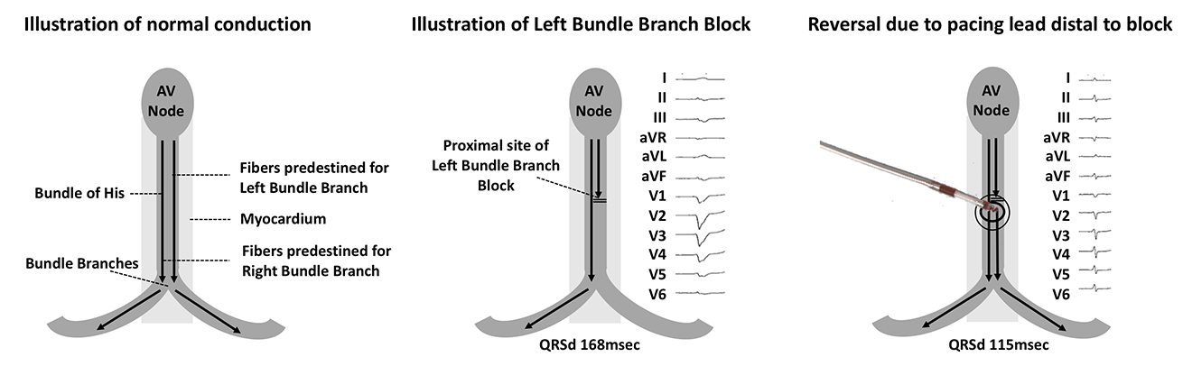 Keene - Pacing: Figure 4. Figure 4. His-bundle pacing is able to overcome left bundle branch block. Multiple hypotheses have been proposed, the simplest is that the His lead is placed distal to the site of the block, thereby allowing it to achieve capture of both the left and right bundle branches