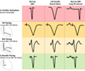 Pacing supplement: His-bundle pacing – UK experience and HOPE for the future