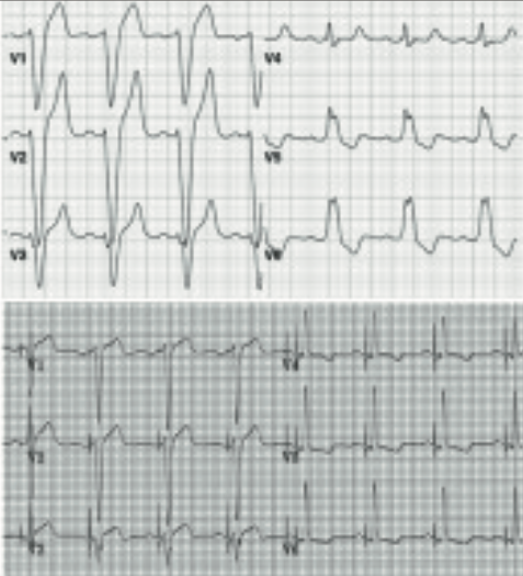 Foley - Pacing supplement: Reversal of left bundle branch block with His-bundle pacing