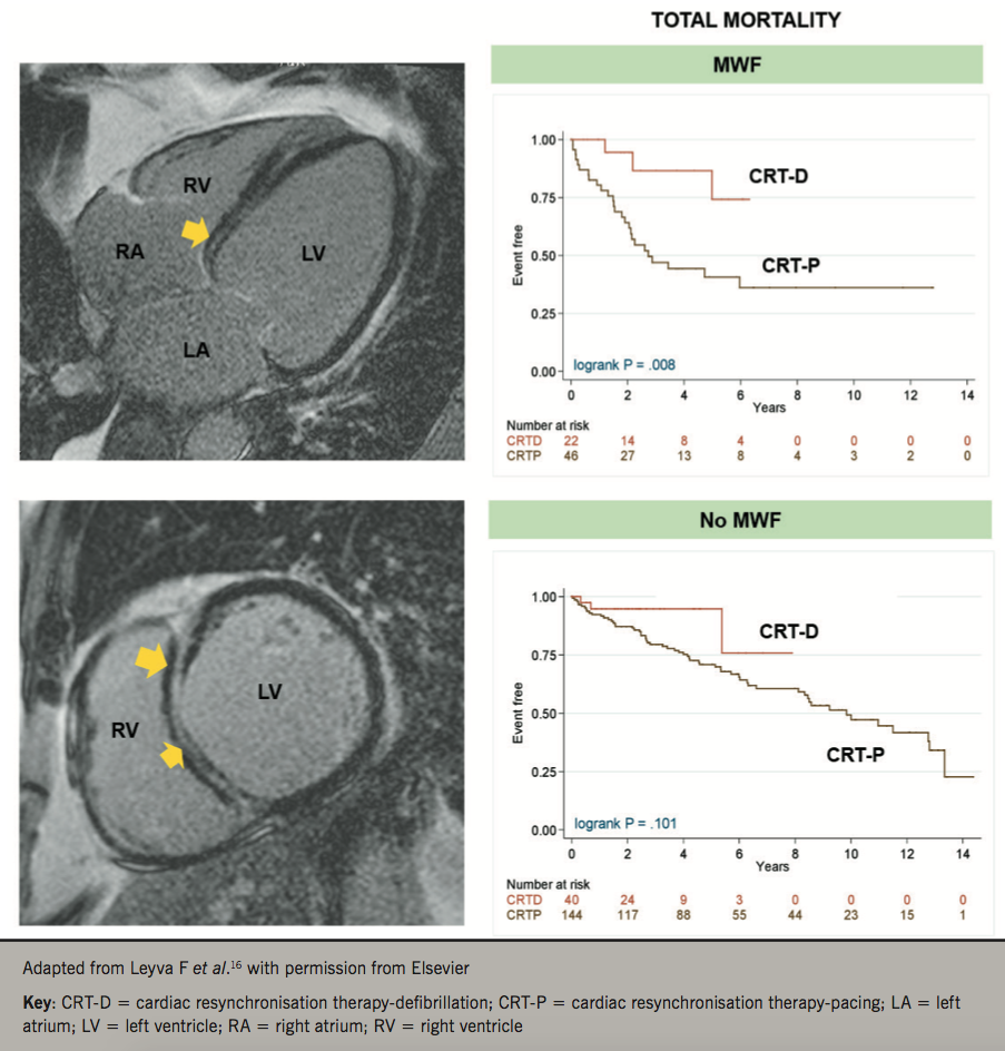 Leyva - Pacing: Figure 2. Total mortality after CRT according to presence of left ventricular (LV) midwall fibrosis. The left panel shows four-chamber and short-axis late-gadolinium enhancement views of the LV showing mid-wall fibrosis (MWF) in a patient with idiopathic dilated cardiomyopathy. The right panel shows total mortality after CRT in patients with and without MWF undergoing CRT-P or CRT-D