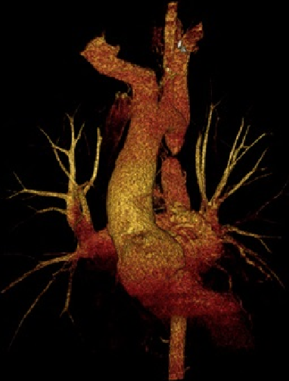 Armstrong - Figure 2. Three-dimensional reconstruction of computed tomography (CT) aortogram showing interruption of thoracic aorta