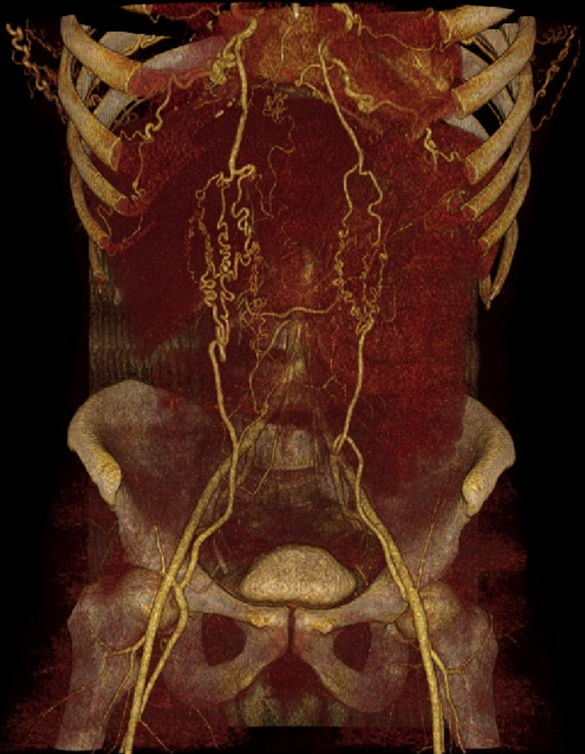 Armstrong - Figure 3. Three-dimensional reconstruction of CT aortogram showing collateral circulation supplying femoral arteries