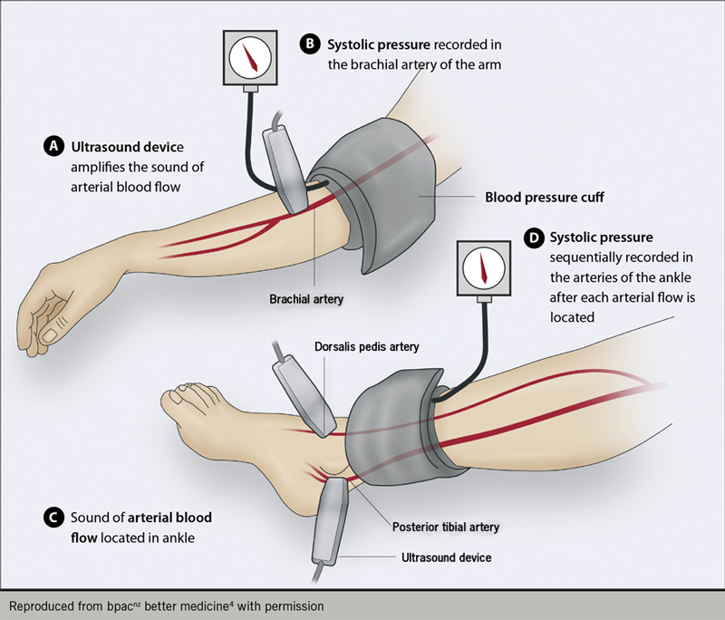Anticoagulation module 6 - Figure 2: The measurement of ankle brachial pressure index