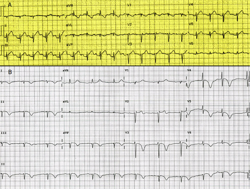 Brennan - Figure 1. A: electrocardiogram (ECG) taken in the ambulance on route to hospital showing ST-elevation in leads II, III and aVF. B: ECG taken in the emergency department showing diffuse T-wave inversion in multiple leads, QT prolongation of 500 ms and minor ST-elevation in V1 and V2