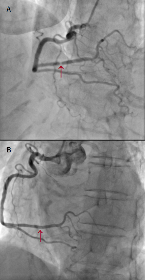 Brennan - Figure 2. Right coronary angiography. A: initial coronary angiography revealed a dominant right coronary artery (RCA) with a severe 90% mid-posterior left ventricular (PLV) branch stenosis. B: angiography performed four weeks later revealed a normal RCA with no significant stenosis