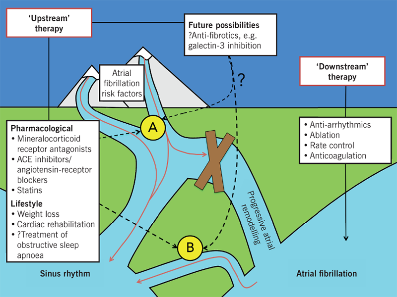 Mills - Figure 1. The long-term future of atrial fibrillation management: current management focuses on 'downstream' therapy, treating the consequences of atrial remodelling; the future might lie in 'upstream' therapy, where pharmacological and lifestyle modification of systemic and atrial factors can prevent (yellow circle A) or modify (yellow circle B) the atrial remodelling process, increasing the likelihood of sinus rhythm maintenance