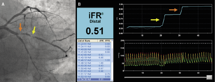 Sayers - Figure 1. Instantaneous wave-free ratio (iFR) pullback in serial lesions. A: angiography shows serial proximal (orange arrow) and distal (yellow arrow) lesions in the obtuse marginal branch. B: actual panel of iFR pressure-wire pullback. Proximal (orange arrow) and distal (yellow arrow) pressure gradients separately demonstrated. iFR pullback can identify severity of each stenosis in serial lesions