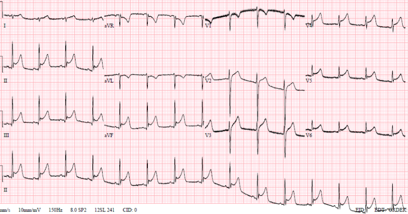 Buttinger - Figure 1. 12-lead electrocardiogram (ECG) showing saddle-shaped ST elevation throughout chest and inferior leads