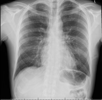 Buttinger - Figure 6. Chest radiograph: chest drain removed. No pleural effusion. Apical pneumothorax has reduced in size. Peripherally inserted central catheter (PICC) line in situ