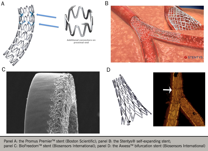 Angina module 7 - Figure 6. Examples of coronary stent technology