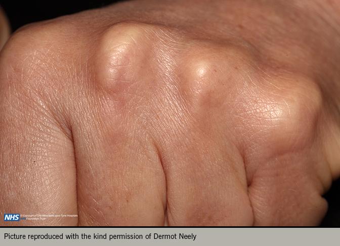 Angina module 4 diagnosis - Figure 4. Tendon xanthomata in the hand
