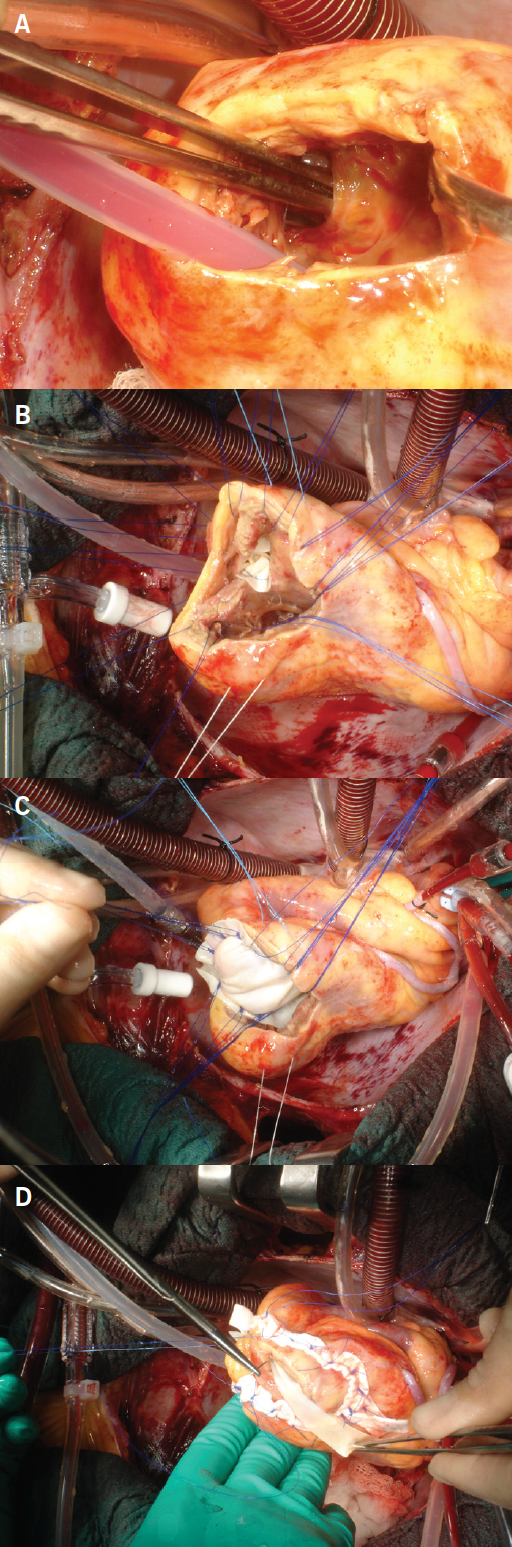 Greco - Figure 2. Operative findings: A. Inferior ventricular septal defect (VSD). B, C and D. Double-patch surgical repair