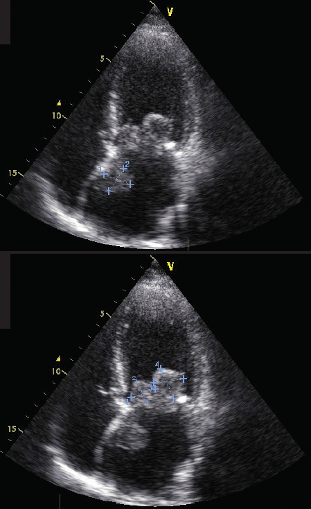 Arakelyanz - Figure 1. Additional mass lesions visualisation: several masses on the cusps of the mitral valve, and one originating from the interatrial septum (apical 4-chamber probe position)