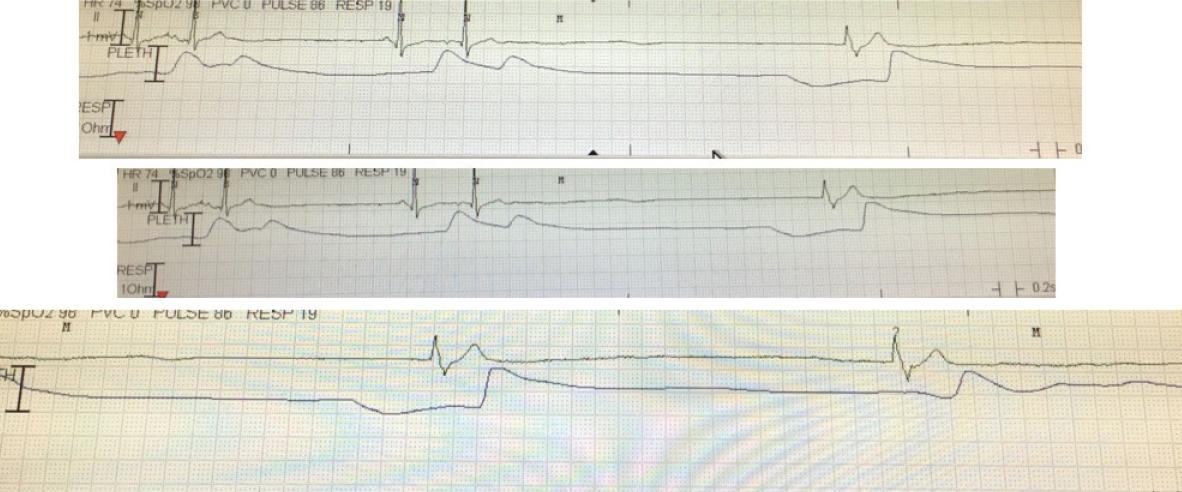 Goss - Figure 1. Cardiac monitor readout