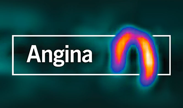 BJC learning module - Angina