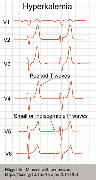Figure 4. Electrocardiogram changes associated with hyperkalaemia