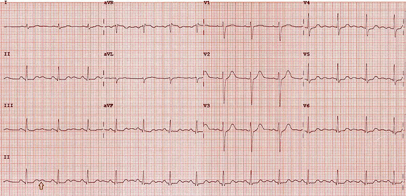 Curren - Figure 1. A 12-lead electrocardiogram (ECG) showing sinus rhythm, normal time intervals and normal QRS-T morphology. There are dominant U-waves in leads II, III, avF, V4 to V6. The U-wave is of similar size, or greater than the preceding T-wave in the same leads (arrow)