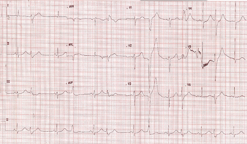 O'Connor - Figure 2. Electrocardiogram showing the drug-induced long QT interval and multiple premature ventricular contractions