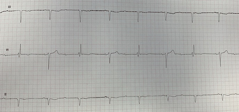 Gondal - Figure 1. Electrocardiogram (ECG) demonstrating paroxysmal ventriculophasic arrhythmia
