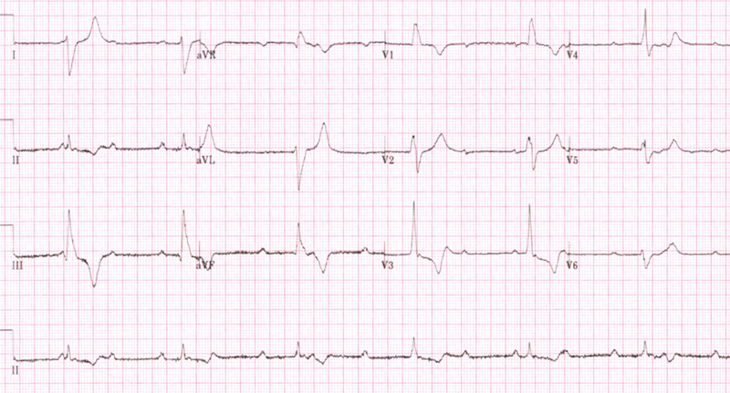 Gondal - Figure 2. 12-lead ECG shows complete heart block, with broad QRS complexes, heart rate of 35/min